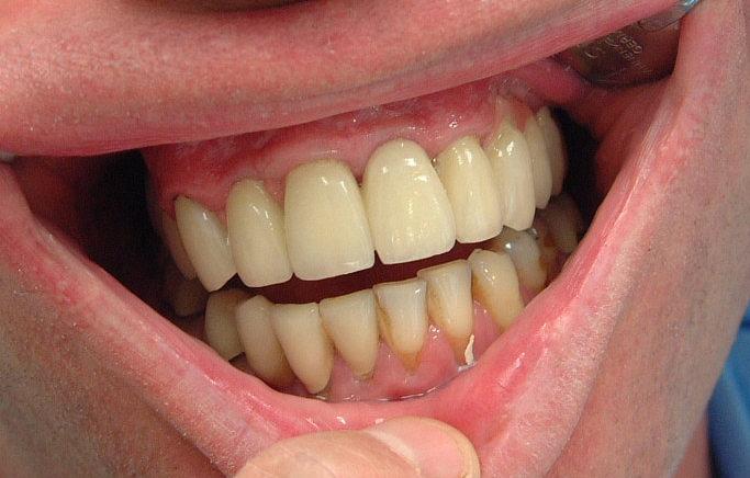 schlechte zähne mit 30