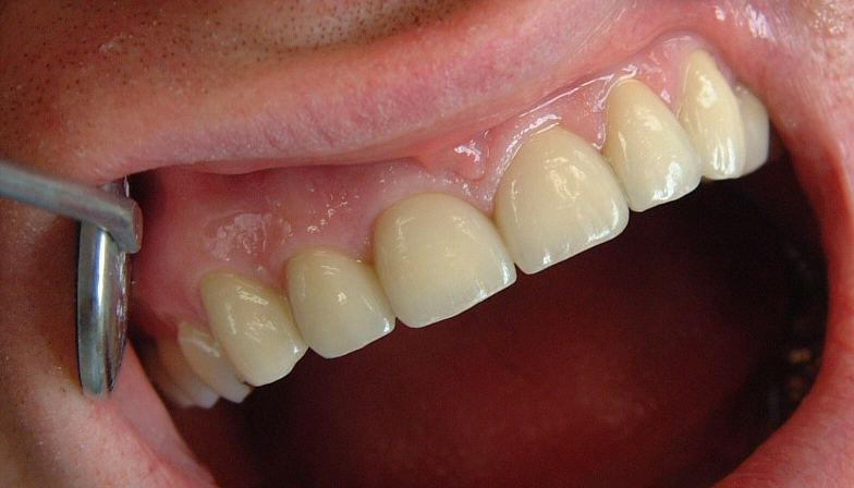haben zahnkronen einen schwarzen rand